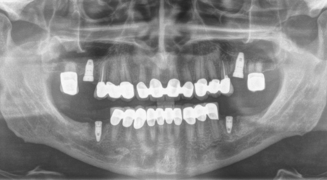 Rx OPT dopo cementazione degli elementi definitivi sui denti naturali, si nota come gli assi dei denti frontali siano stati spostati mesialmente e come le odontotomie non abbiano reso necessario la devitalizzazione dei denti. Le terapie canalari sono state eseguite solo sui secondi premolari che risultavano molto sensibili al freddo.