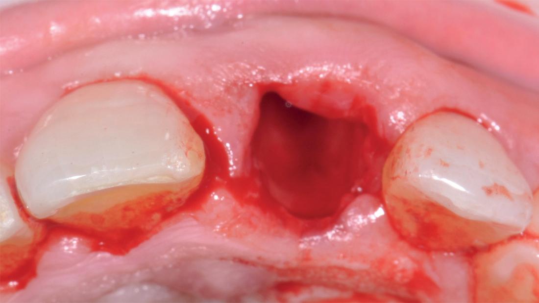 Alveolo post-estrazione.