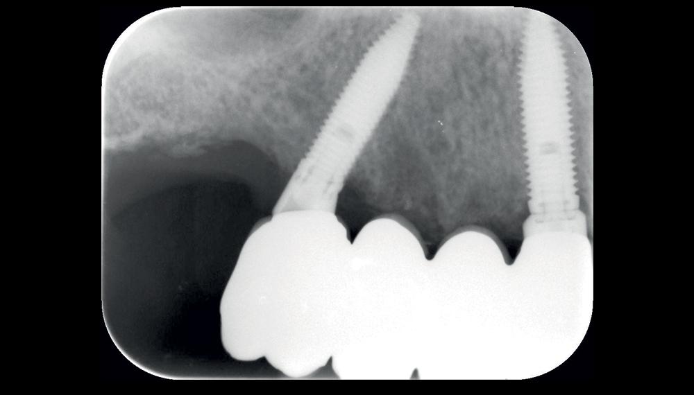 Immagini vestibolari e radiografiche della protesi definitiva a 36 mesi di follow up.