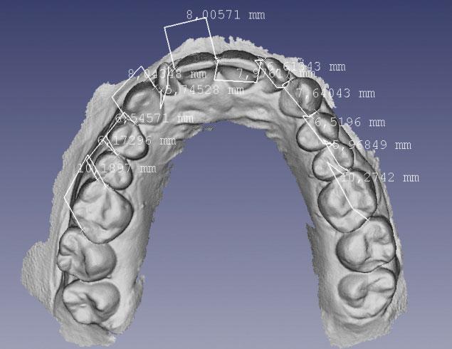 Figura 1. File STL ricavati da una scansione di una doppia di modelli in gesso (arcata superiore e inferiore) con relative misurazioni dell'ampiezza dentale mesio-distale dentale.