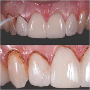 Fig. 3, 4. Collochiamo il mock up per farci guidare nella gingivectomia.