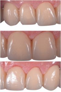 Fig. 11-13. Processo di guarigione a 7 giorni dalla fase chirurgica.