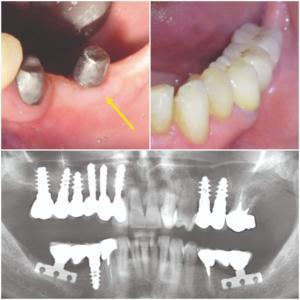 Figura 12. L'aspetto della mucosa attorno al moncone preprotesico della lama di sinistra e il ponte definitivo in metalloceramica. L'OPT del caso a 9 anni.