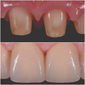 Fig. 14 e 15. Processo di guarigione a 30 giorni dalla fase chirurgica.