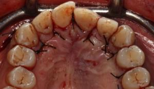 Fig. 7. Riposizionamento del lembo mucoperiosteo e suture.