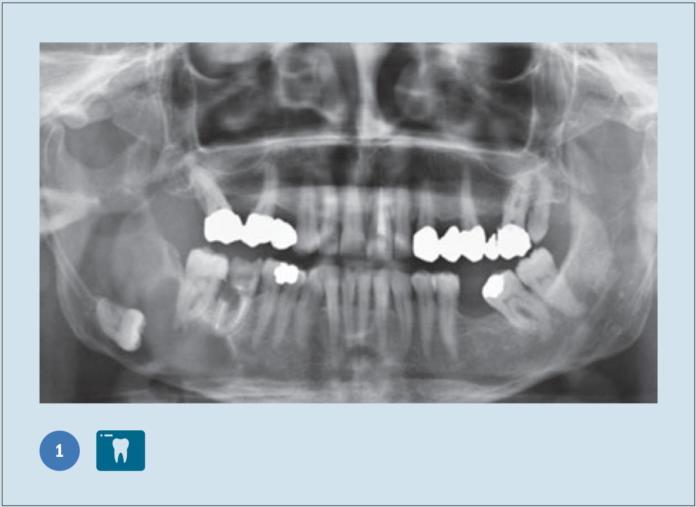 inclusione terzo molare