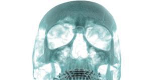 prevenzione del contenzioso in chirurgia maxillo-facciale