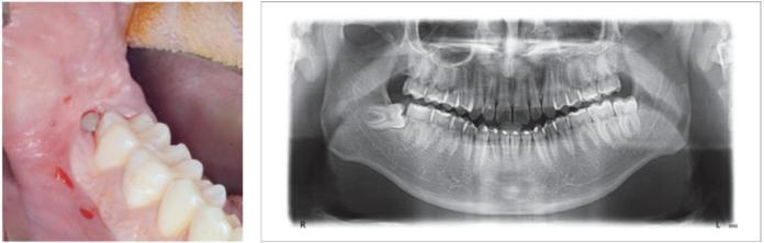 terzo molare